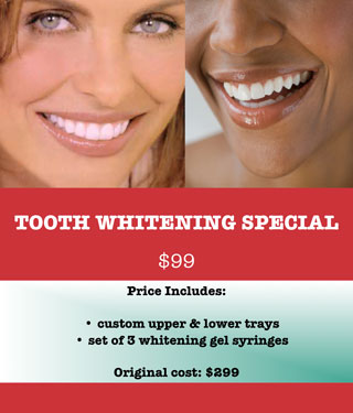 Tooth Whitening Special - Dr Partick Briese - Rayne, LA