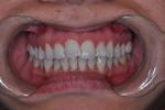 INVISALIGN-INVISIBLE-BRACES-Before-Image