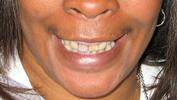 Dentures-Before-Image