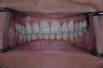 INVISALIGN-INVISIBLE-BRACES-After-Image
