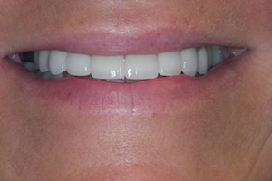 Veneers & Crowns